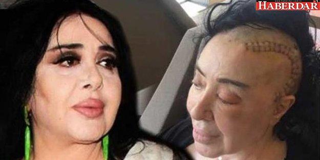 Nur Yerlitaş: Kemoterapi beni çok yordu