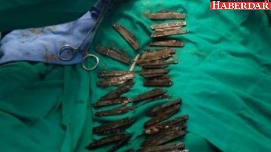 'Tadı güzel' diye 40 tane bıçak yuttu
