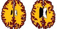 Aşırı kilo beyni yaşlandırıyor