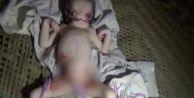 Hindistan'daki 'uzaylı' bebek herkesi şaşırttı!