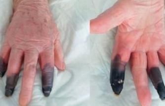 Koronavirüse yakalandıktan sonra kangren olan kadın, parmaklarını kaybetti