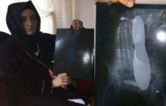 Kadın hastanın karnında unutulan mala için Sağlık Bakanlığı 82 bin lira tazminat ödeyecek