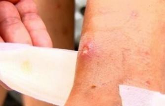 Avcılar'da sivrisinek kabusu büyüyor
