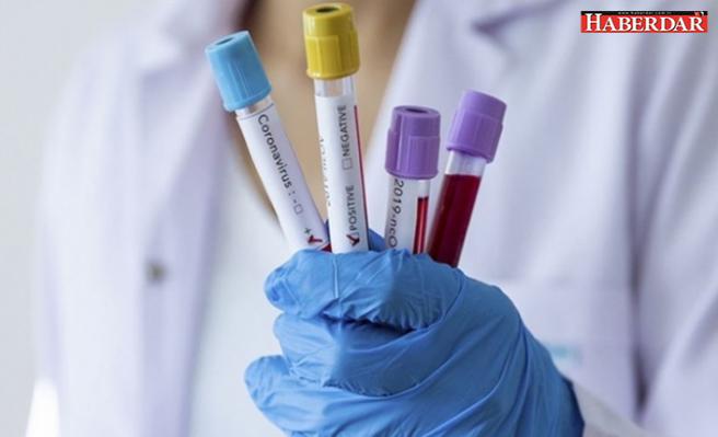 Kan grubu koronavirüs risk oranını etkiler mi? Uzman yanıtladı