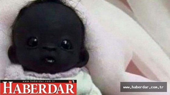 Dünyanın en siyah bebeği
