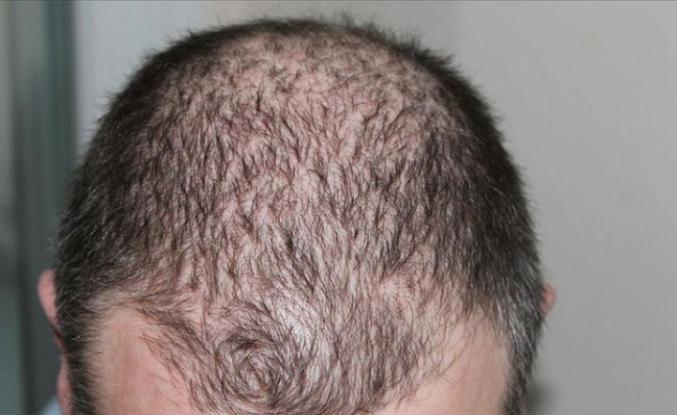 Koronavirüsü atlatanları bekleyen tehlike: 'Ciddi düzeyde saç dökülmesi olabilir'