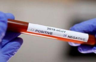 Koronavirüsten ölen bazı hastaların test sonucu...